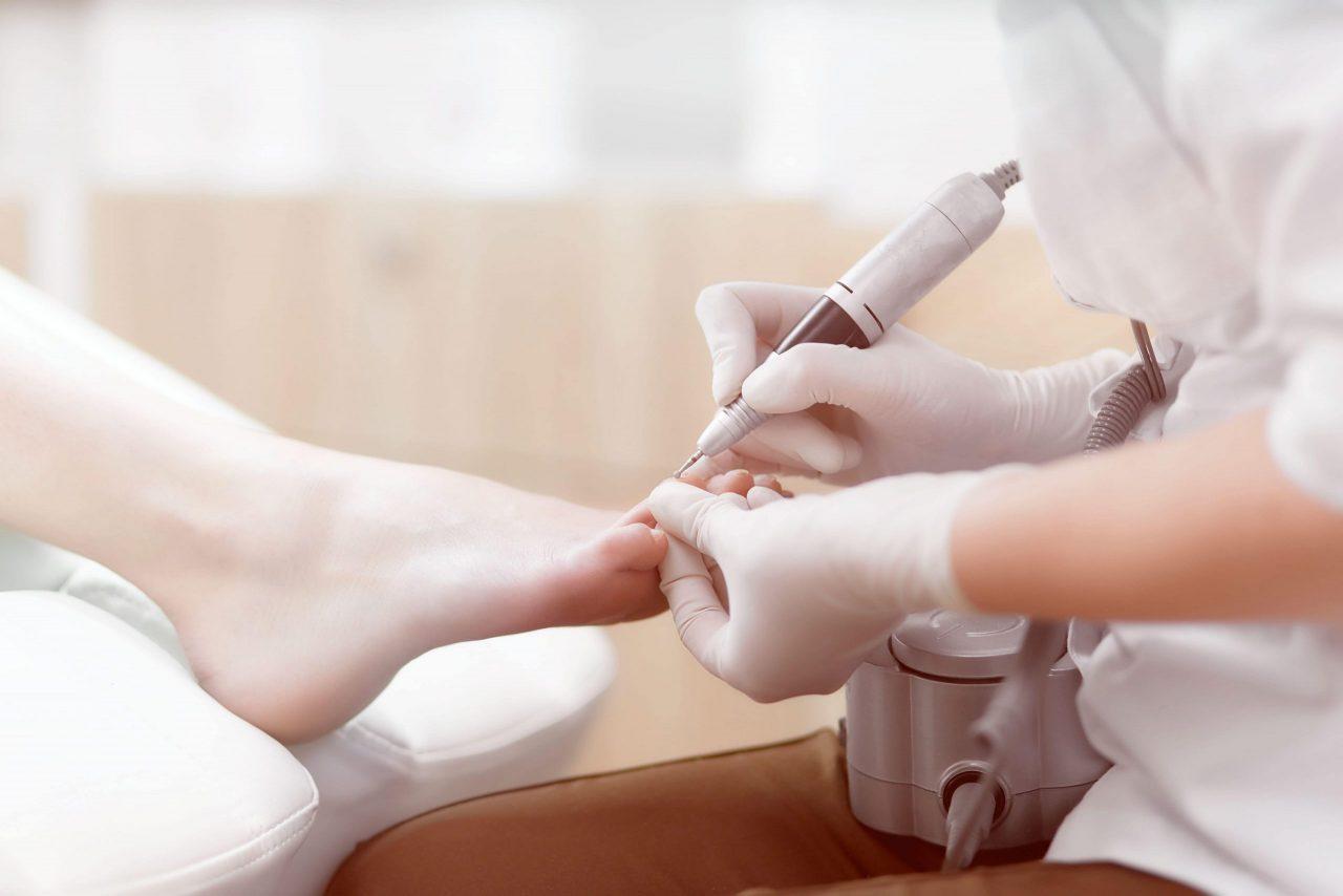 Fußpflege in Speyer - Nagelpilzbehandlung